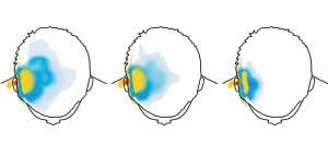 Strahlenaufnahme im Kopf